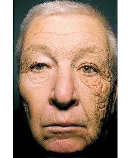 primo piano danni del sole sulla pelle