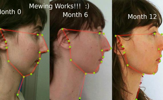mewing-risultati-visotonic