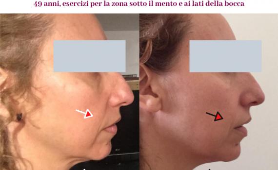 ginnastica facciale-effetti
